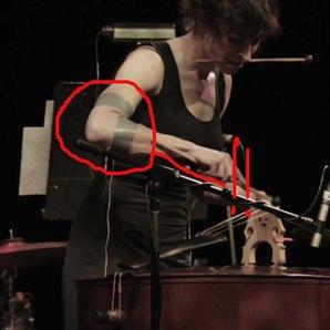 electric shock musician