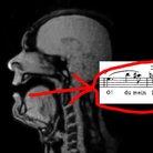 opera singer mri scanner